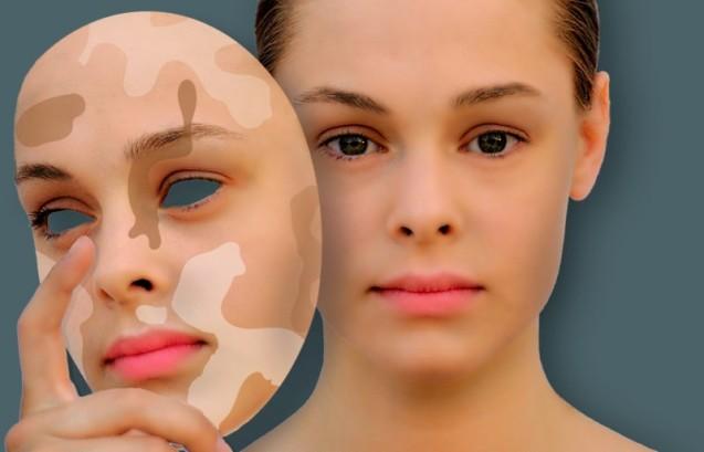 Пігментація шкіри. Що допоможе: лазерний пілінг vs хімічний пілінг?