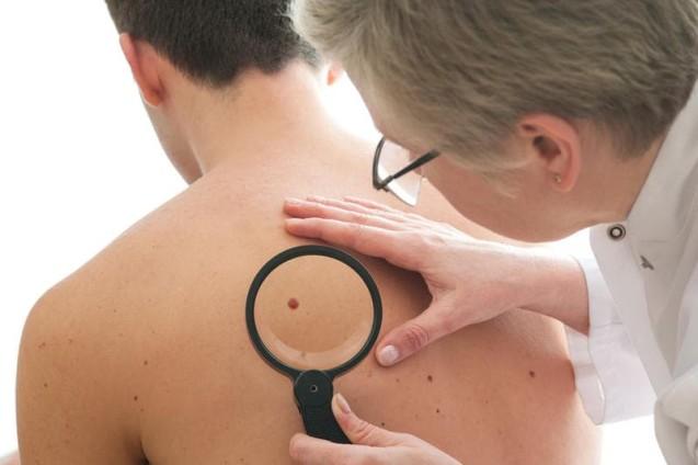 Передракові захворювання шкіри
