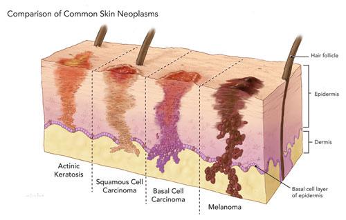 Немеланомний рак шкіри