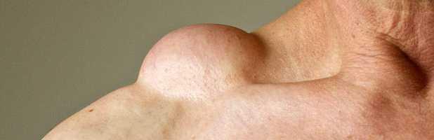 Видалення ліпоми (хірургічне)