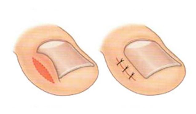 Видалення врослого нігтя (хірургічне)