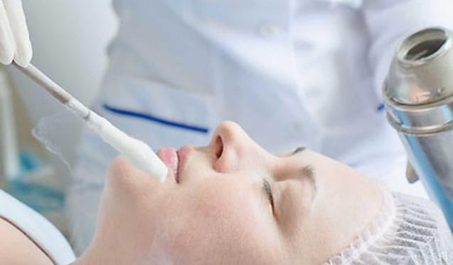 Кріотерапія. Лікування холодом