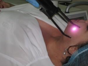 """Процедура лазерного лікування куперозу в клініці """"БРАСС. Здорова шкіра"""""""