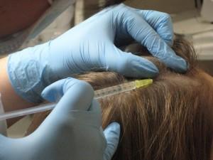 """Мезотерапія волосся в клініці """"БРАСС. Здорова шкіра"""""""