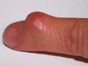 Рисунок - гігрома пальця руки
