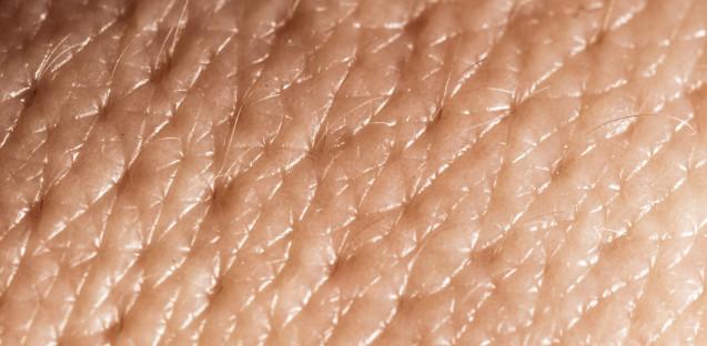 Дермопластика – трансплантація шкіри (Івано-Франківськ)