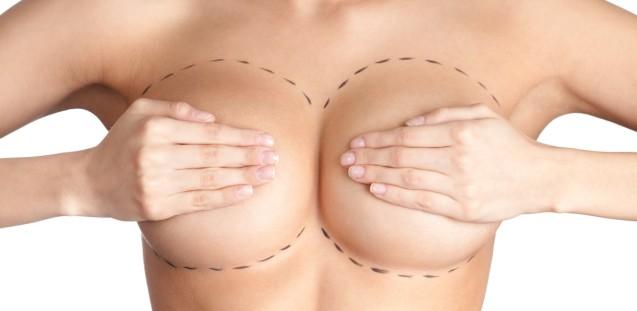 Реімплантація молочної залози