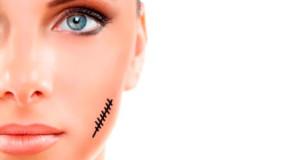 Видалення доброякісних новоутворень та рубців на шкірі
