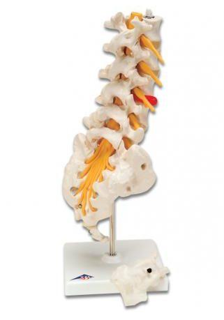 Ультразвукова діагностика поперекового відділу хребта