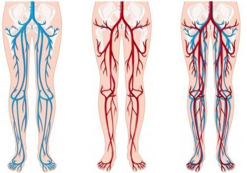 Ультразвукова діагностика судин нижніх кінцівок (доплерографія)