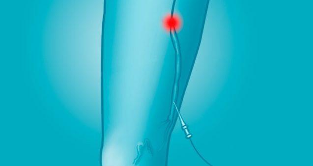 Коагуляція вен нижніх кінцівок: методика проведення, переваги